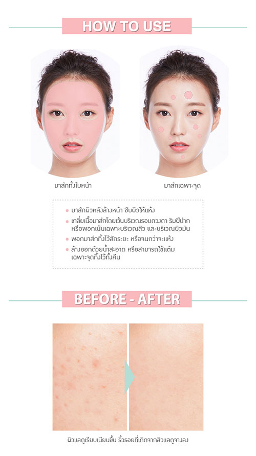 Acne Pink Mask