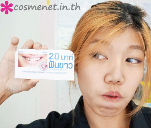 รีวิว Sparkle Whitening Kit