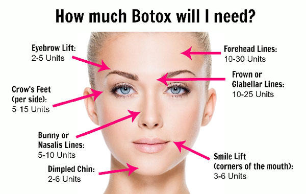How much botox will i need