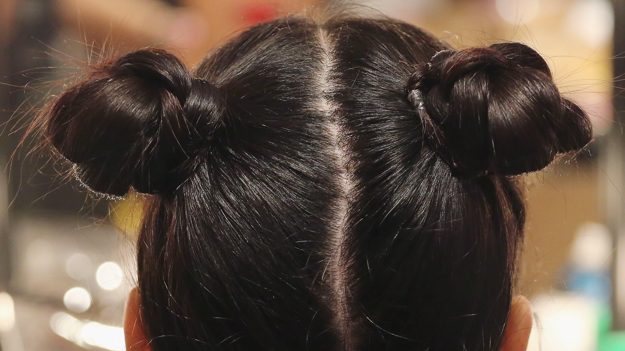染髮後頭皮發癢,如何終止頭皮屑和治療