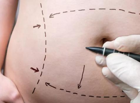 關於腹部抽脂你需要知道的5件事