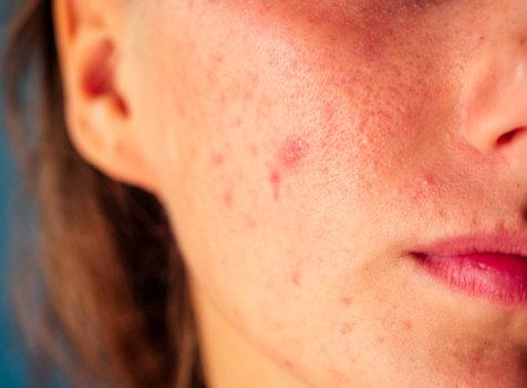 紅痘疤真的很討厭!5個消除紅痘疤秘訣教給你