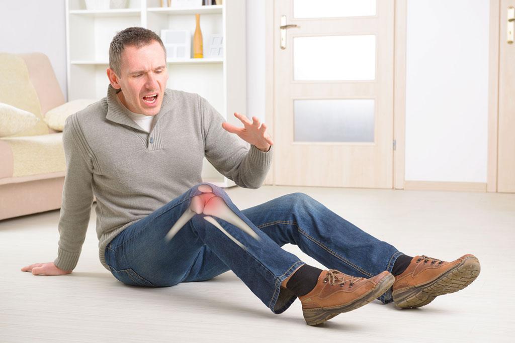 什麼是退化性關節炎