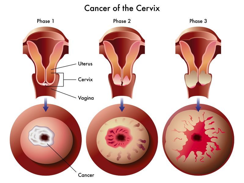25 Gejala Kanker Serviks yang Patut Diwaspadai