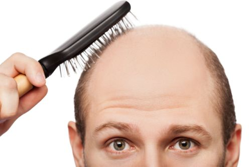 Know what is Male Pattern Baldness