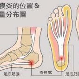 【脚底筋膜炎 】(Plantar Fasciitis)
