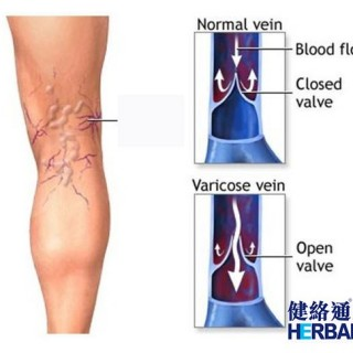【脚痛 -静脉曲张】(Varicose Varix)