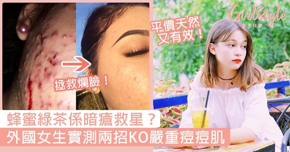 蜂蜜綠茶係暗瘡救星?外國女生靠兩招平價天然護膚方法,KO爛臉痘痘肌!