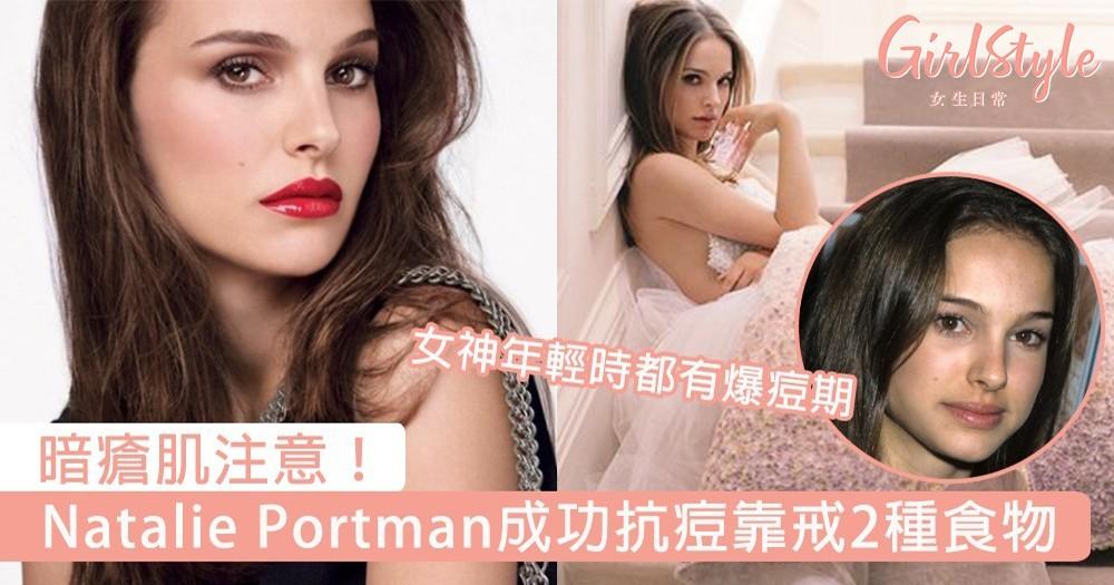 暗瘡肌注意!Natalie Portman自爆曾是暗瘡肌,為回復光滑肌膚絕不吃「2種食物」!
