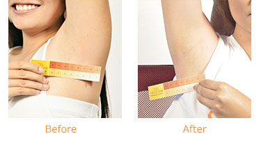 Gluta-C Whitening Deodorant - Before and After