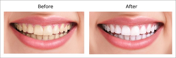 dental-cleanup-phuket