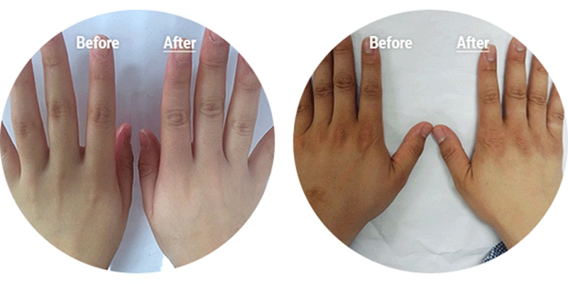 Before After Results Proof