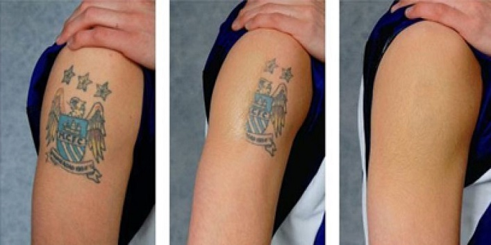 How to remove tattoo5