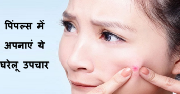Effective Home Remedies For Treating Pimples cover
