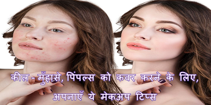 Amazing Makeup Hacks To Cover Acne And Pimples cover
