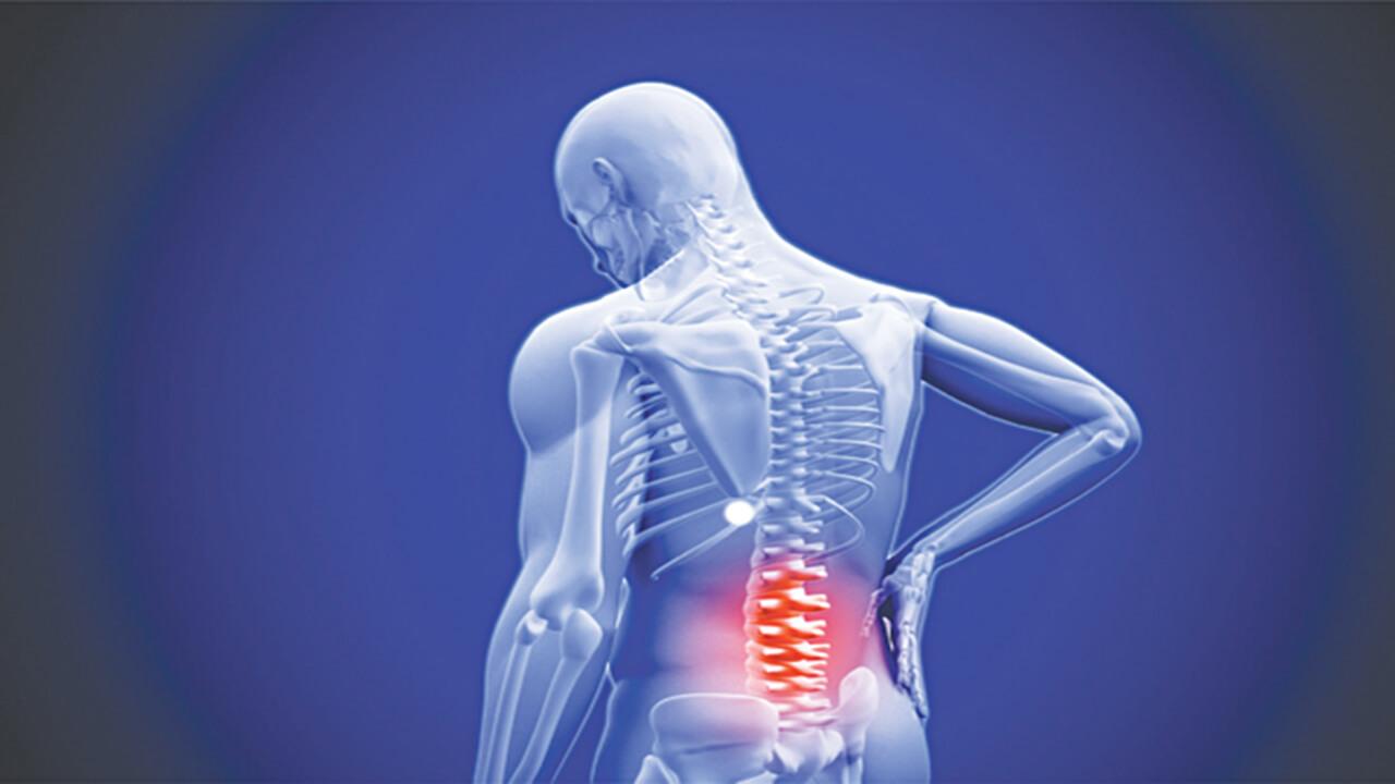Cách điều trị thoát vị đĩa đệm cột sống lưng