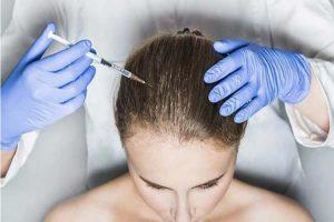 Điều trị rụng tóc bằng phẫu thuật