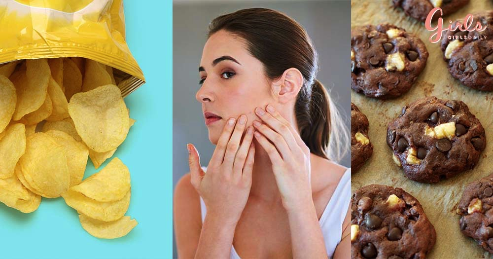 6 Food Items That Are Not Good For Your Skin!!