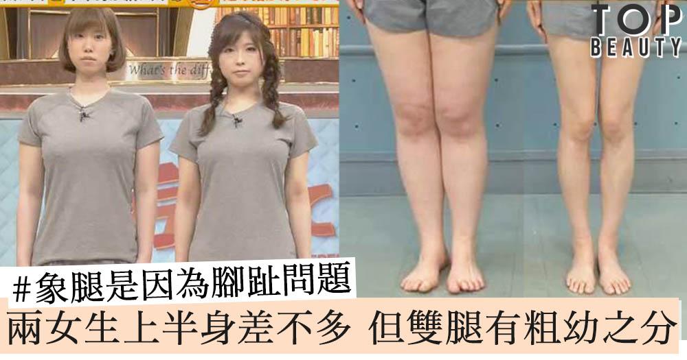 象腿是因為腳趾問題?兩女生上半身差不多,但雙腿有明顯粗幼之分,矯正解決腳粗問題!