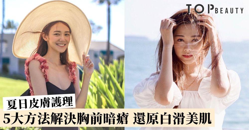 【夏日皮膚護理】胸前暗瘡令低胸裝大煞風景?6個方法令暗瘡不再出現!