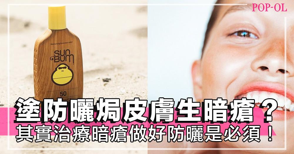 塗防曬焗住皮膚就生暗瘡?其實治療暗瘡期間做好防曬是必須!暗瘡與防曬可共存,只要你用對方法~!
