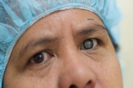 Ecomedic - he sinh thai y te - hoi bac si mien phi - bệnh về mắt 1