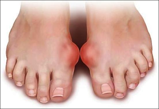 Chế độ ăn uống cho người bị bệnh Gout