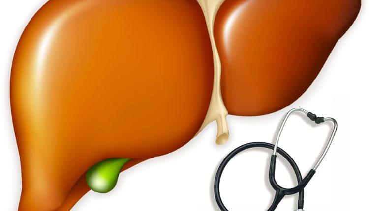 Triệu chứng, nguyên nhân và biện pháp phòng tránh bệnh ung thư gan