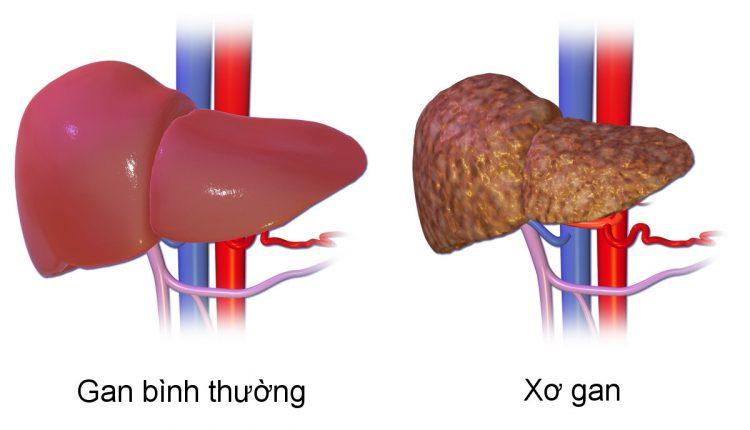 Nguyên nhân, cách phòng tránh, dinh dưỡng cho người mắc bệnh xơ gan