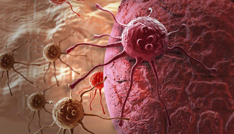 Điều trị ung thư bằng nam châm