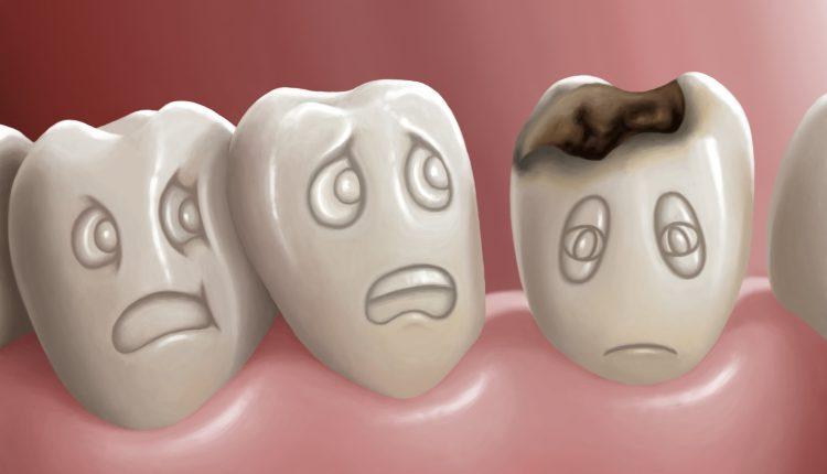 Sâu răng ở trẻ nhỏ – Không được lơ là
