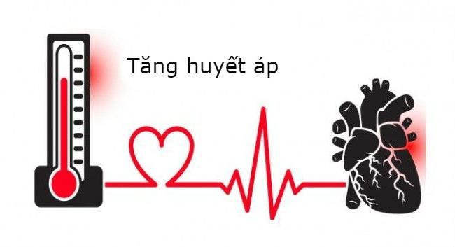 Đừng đợi huyết áp lên 140/90 mmHg mới nghĩ là tăng huyết áp!
