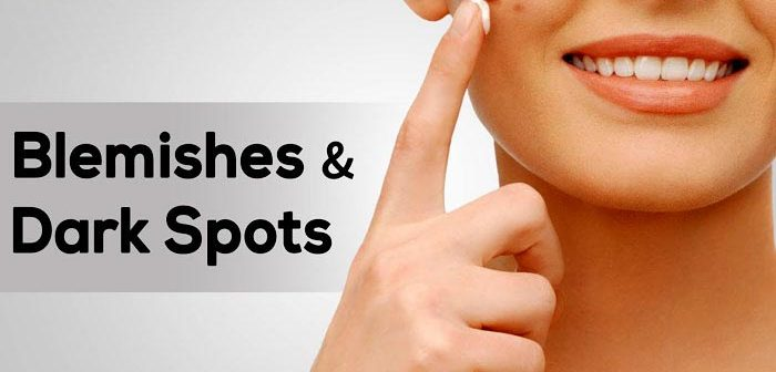 19 Home Remedies on How to Get Rid of Dark Spots & Blemishes