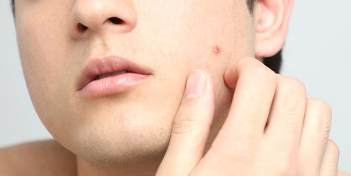 Home How remedies on cure to pimples forehead