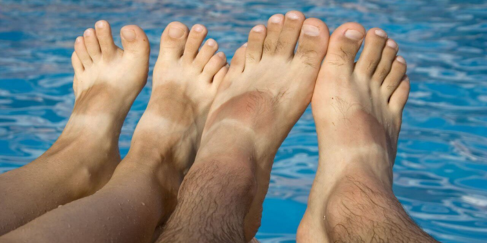 Remove Sun Tan from Feet