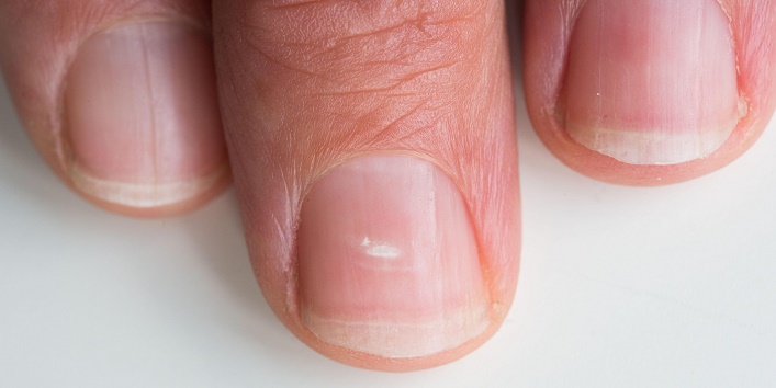 6 Ways to Get Rid of White Spots from Fingernails