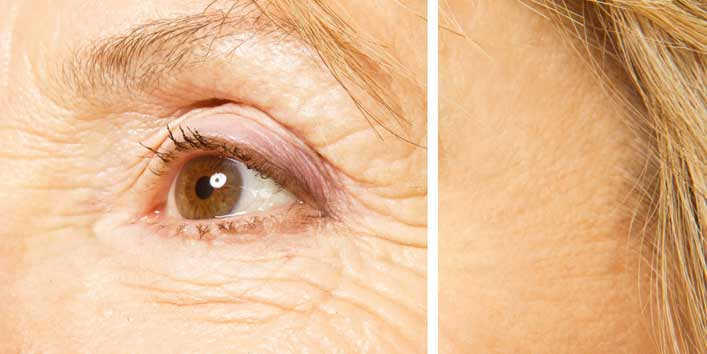 Get rid of wrinkles (defy aging using apple cider vinegar for skin care)
