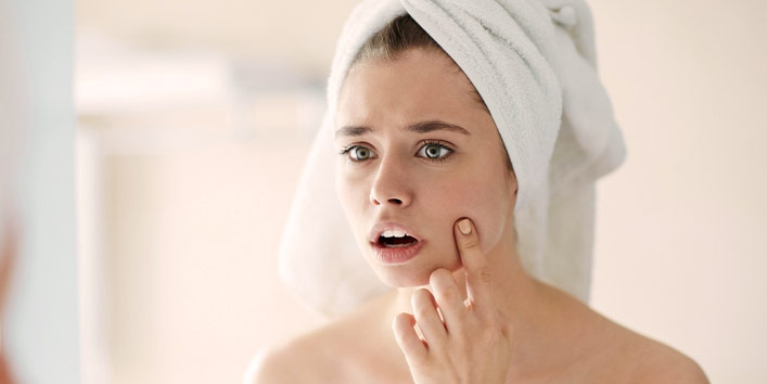 Treat pimples and acne