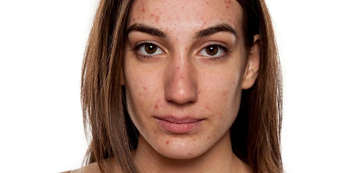 Hormonal acne strikes after the teenage years