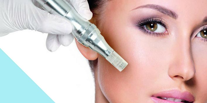 Opt for micro needling treatment