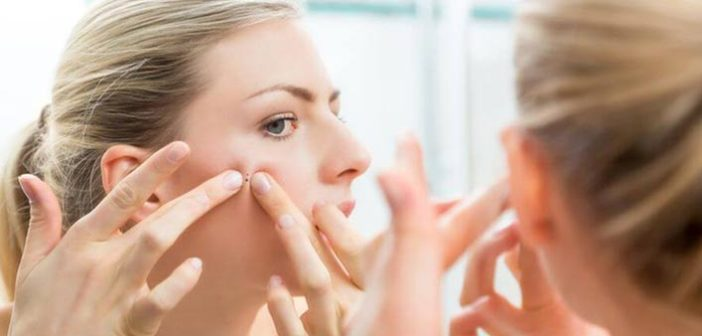 7 Amazing Ways to Get Rid of Blackheads Effectively