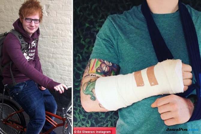 Ed Sheeran kecelakaan