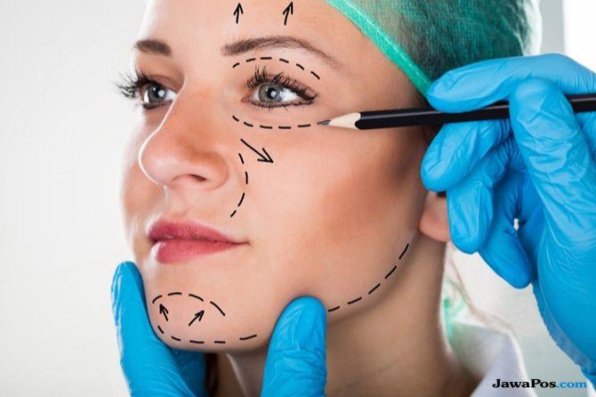 ratna sarumpaet, wajah memar ratna sarumpaet, operasi plastik,