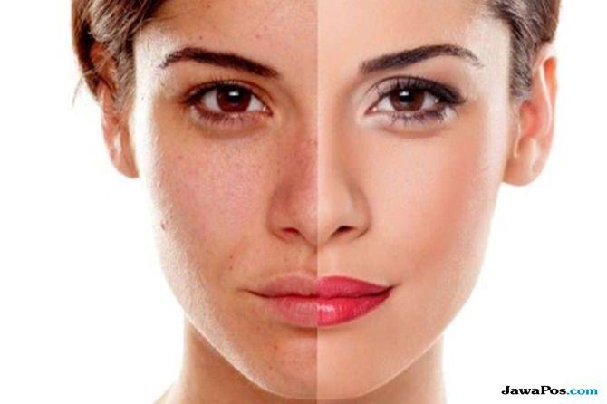 perawatan kulit muka, penyebab kulit kusam, solusi kulit kusam,