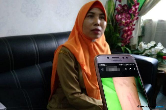 Miris! Siswi yang Sayat Tangannya Sendiri: Awalnya Perih, Tapi Puas