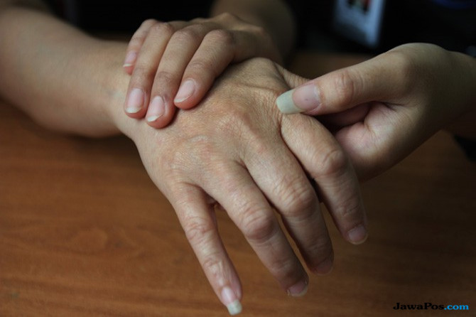 Penderita Parkinson Tidak Boleh Diam