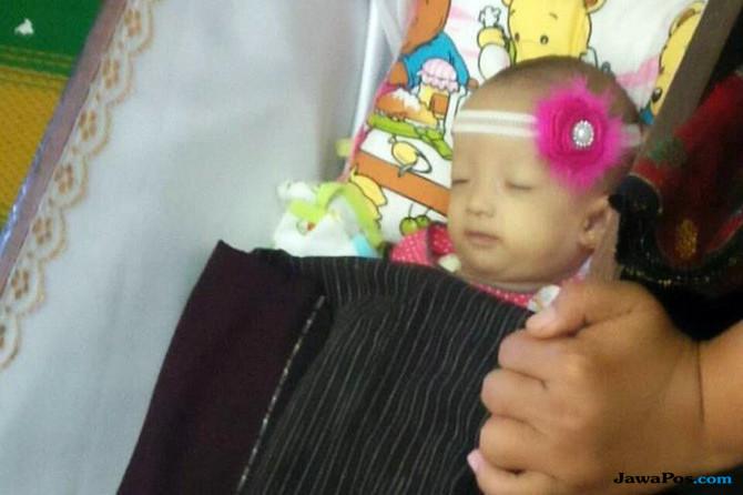 Polisi Dalami Kasus Kematian Bayi Debora, Ancamannya Penjara 10 tahun