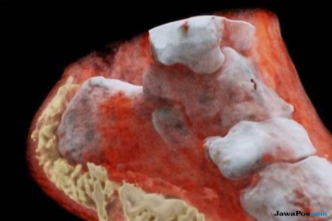 Wow, X-Ray Berwarna Telah Ditemukan di Selandia Baru