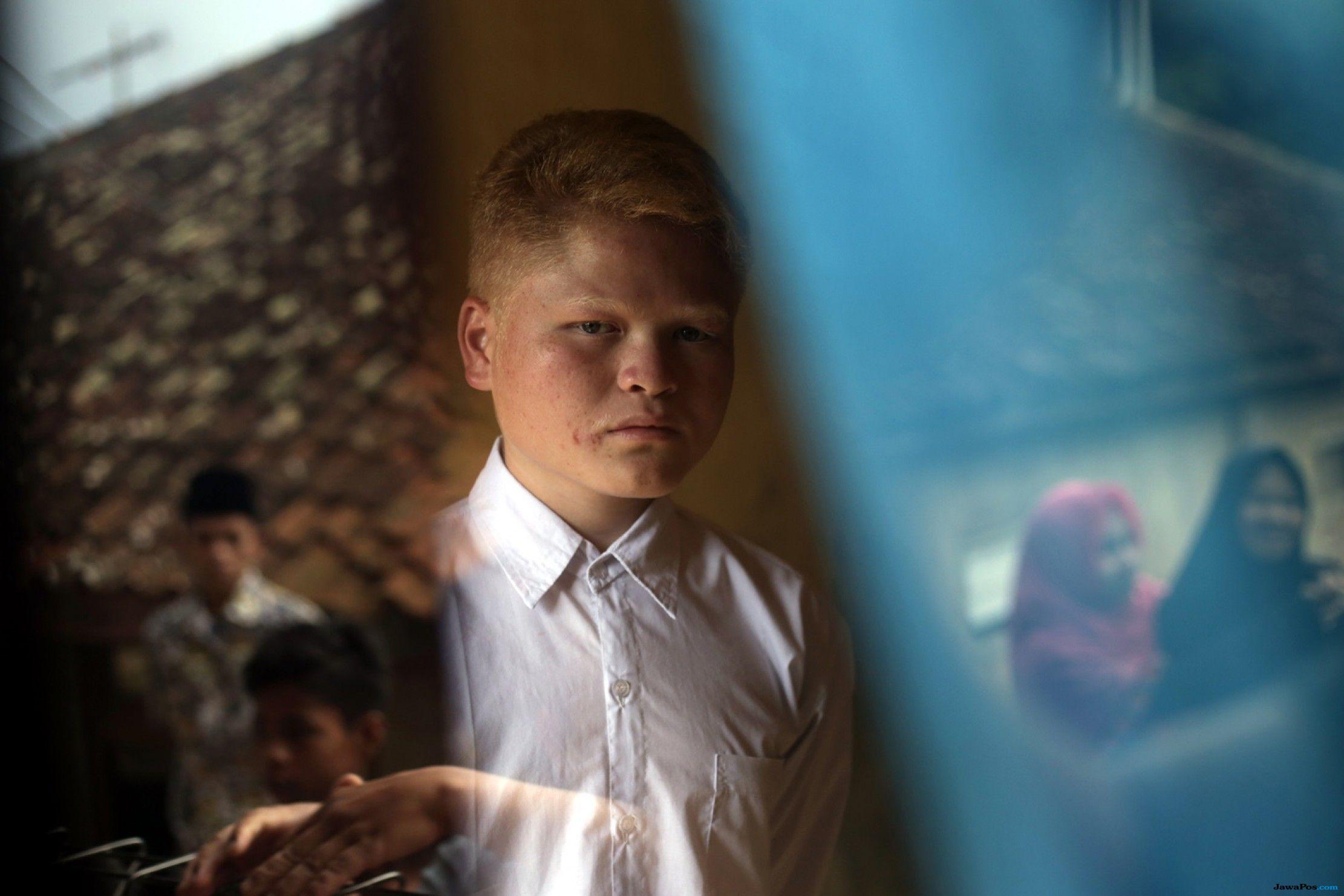 Melihat Kehidupan Kampung Albino atau Sunda Walanda di Garut (2-Habis)