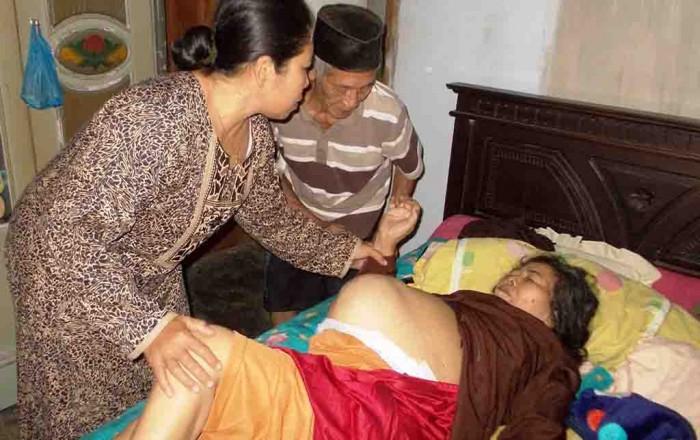 MEMPRIHATINKAN: Marpik dengan perut yang membesar karena terserang tumor hanya bisa tidur di rumahnya Dusun Kebonsari, Desa Benculuk, Kecamatan Cluring.
